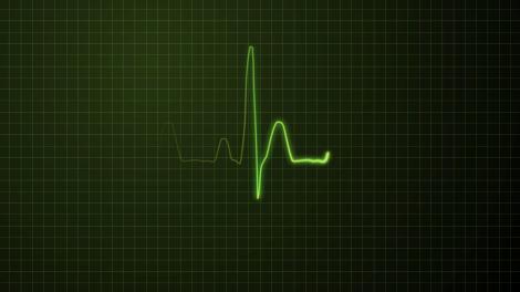 EKG display